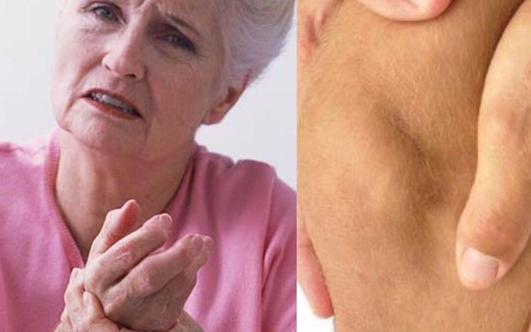 Curare l'artrosi delle articolazioni con la medicina naturale